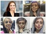 Year Old Got 50 Surgeries Look Like Angelina Jolie