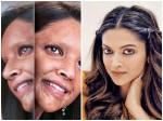 Chapaak Deepika Padukone Transforms Into Acid Attack Survivor In First Look Out