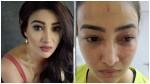 Actress Nalini Negi Accuses Roommate Of Physical Assault