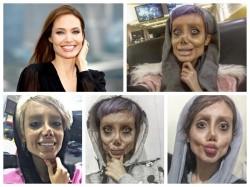 19 Year Old Got 50 Surgeries Look Like Angelina Jolie