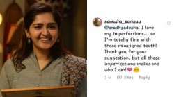 Sanusha S Reply About Teeth Clipping Suggestion